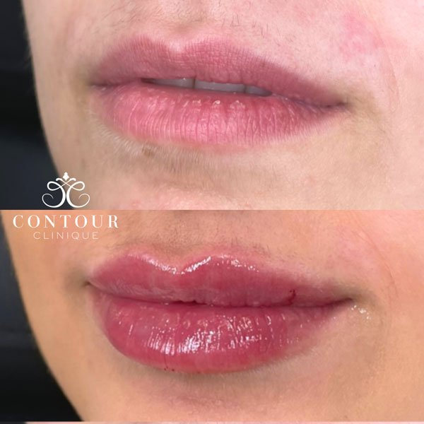 Before & After Lip Filler