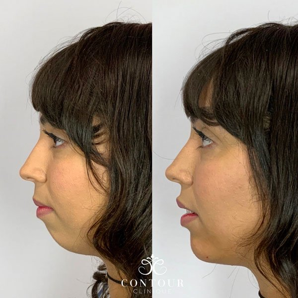 Chin Injections