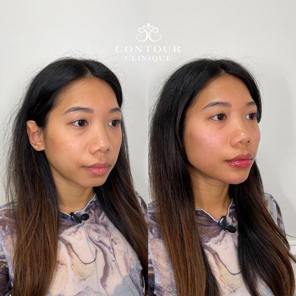 Custom Beautification Treatments