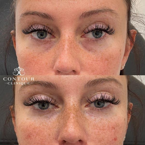Dark Circle Eye Injections