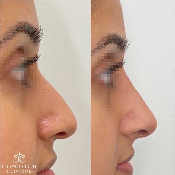 Nose Reshaping with Dermal Filler