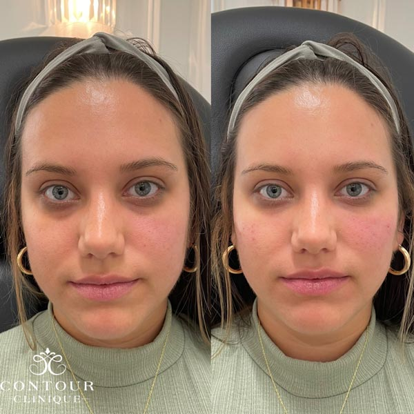 Under Eye Injections Before & After